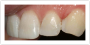 Anterior Composite fillings After Client 2