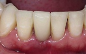 Anterior Single Implant placement After Client 1