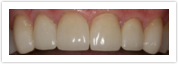 Dental Veneers After Client 2