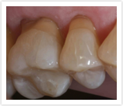 Posterior Composite Fillings After Patient 6