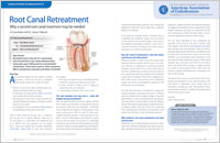 Root canal retreatment article from Dear Doctor magazine