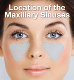 Location of the Maxillary Sinuses